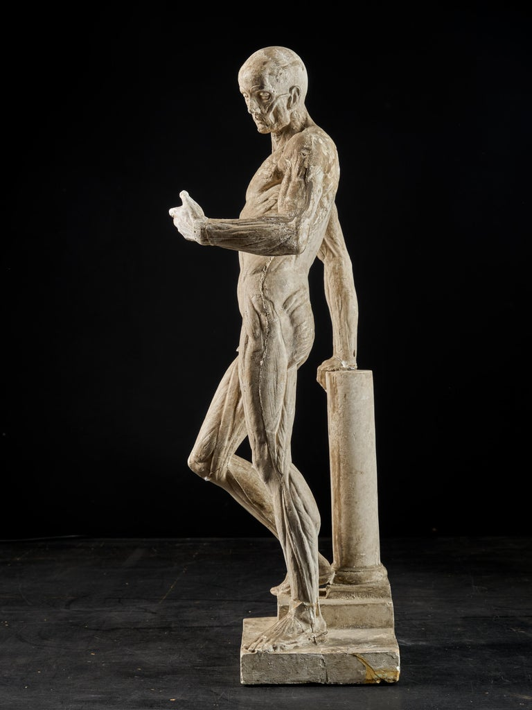 19th Century, Italian School, Two Anatomical Flayed Figures in Plaster In Fair Condition For Sale In Leuven , BE