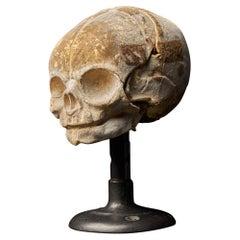 19th Century Papier-Mâché Fetal Skull