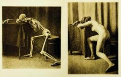 Ein Anatomischer Totentanz.