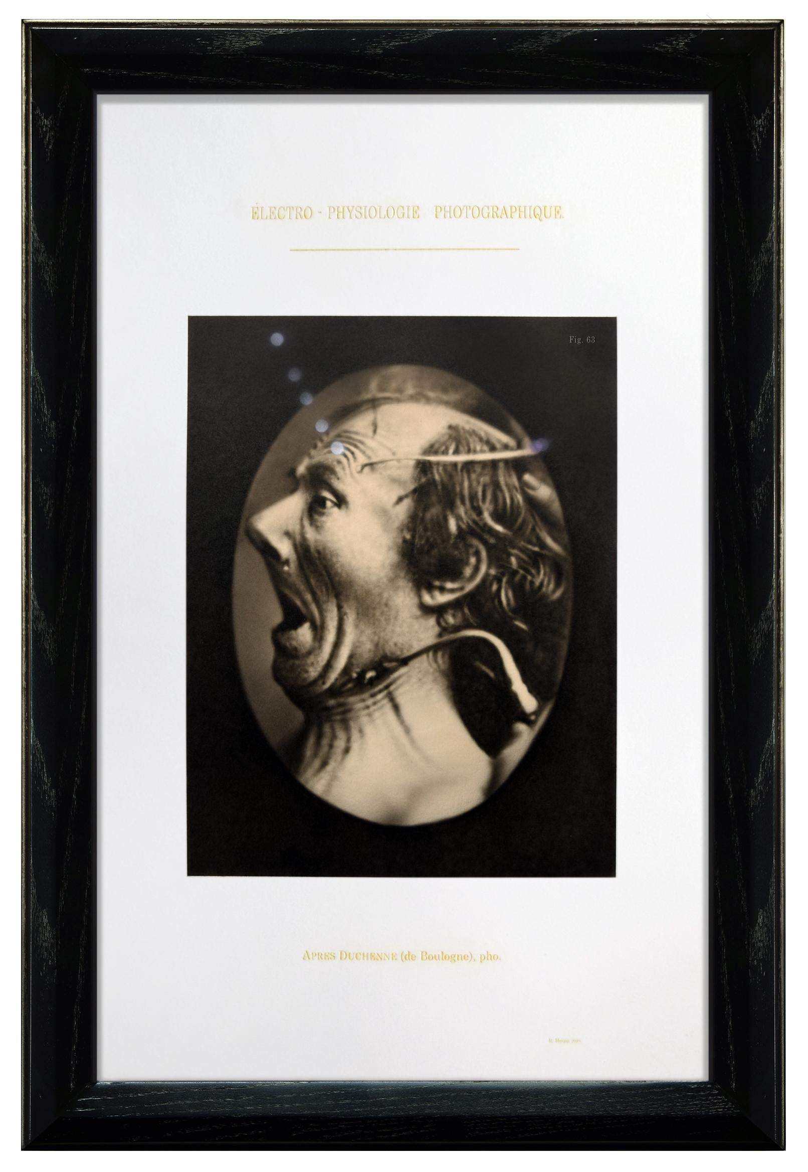 ELECTRO-PHYSIOLGIE SERIES - FIGURE 63 - hyperrealistic painting