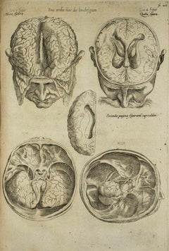 "The Brain - Original Etching - ""De Humani Corporis Fabrica"" - by A. Vesalio-1642"