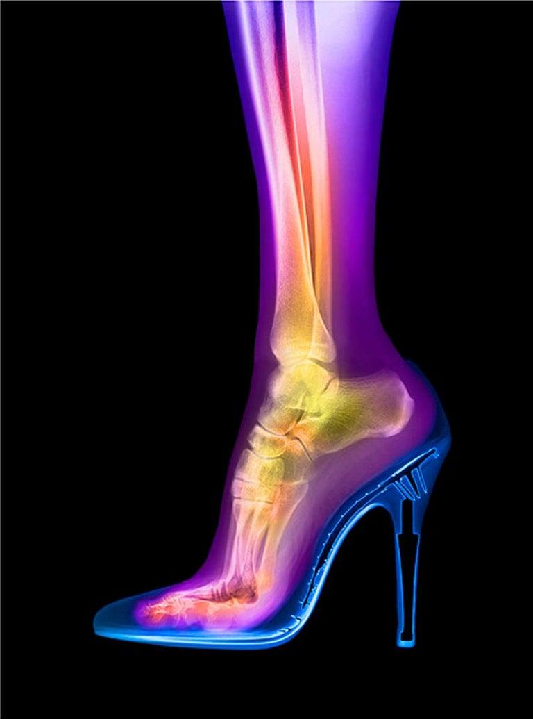 Femme Fatale - contemporary female leg high heel xogram x-ray photograph print - Print by Hugh Turvey
