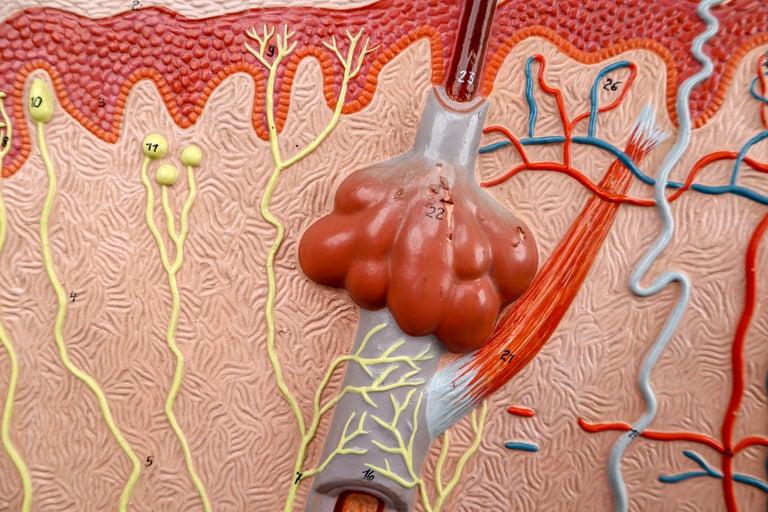Anatomical Teaching Model Plaster on Metal Base Czech Republic, 1960s For Sale 4