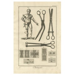 Antique Medical Print 'Pl. XXX' by D. Diderot, circa 1760