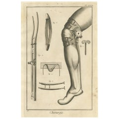 Antique Medical Print 'Pl. XXXIII' by D. Diderot, circa 1760