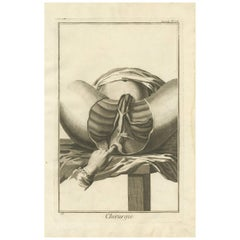 Antique Medical Print 'Seconde Pl. XIII' by D. Diderot, circa 1760