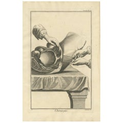 Antique Medical Print 'Seconde Pl. XIV' by D. Diderot, circa 1760