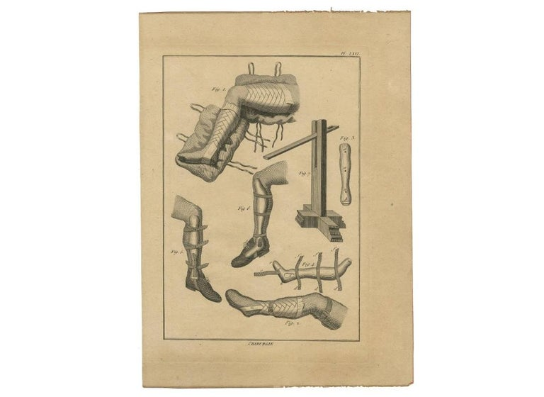 18th Century Antique Print of Leg Surgery Techniques by H. Agasse, circa 1798 For Sale