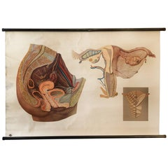 "Antique Swedish School, Teaching Chart, Poster ""Female Pelvic Organs"""