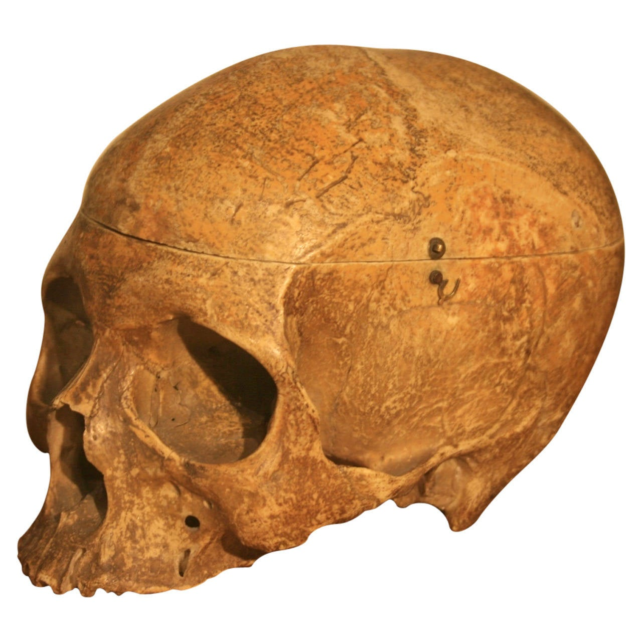 19th Century Medical School Human Skull 1