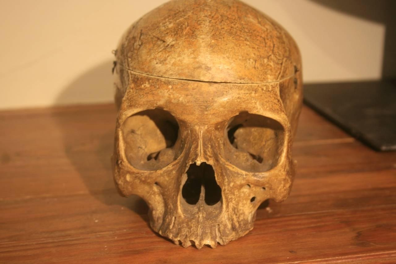 19th Century Medical School Human Skull 3
