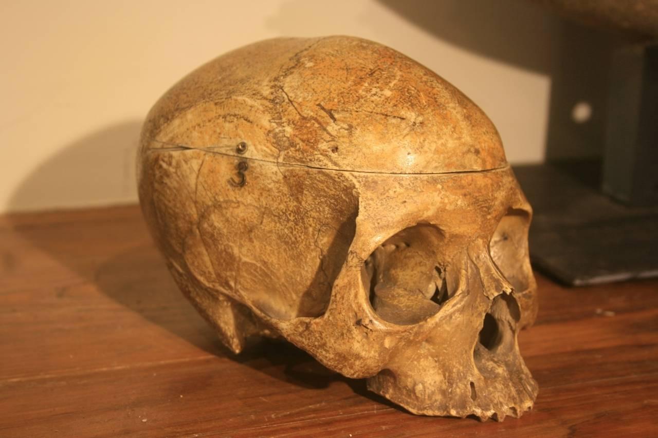 19th Century Medical School Human Skull 4