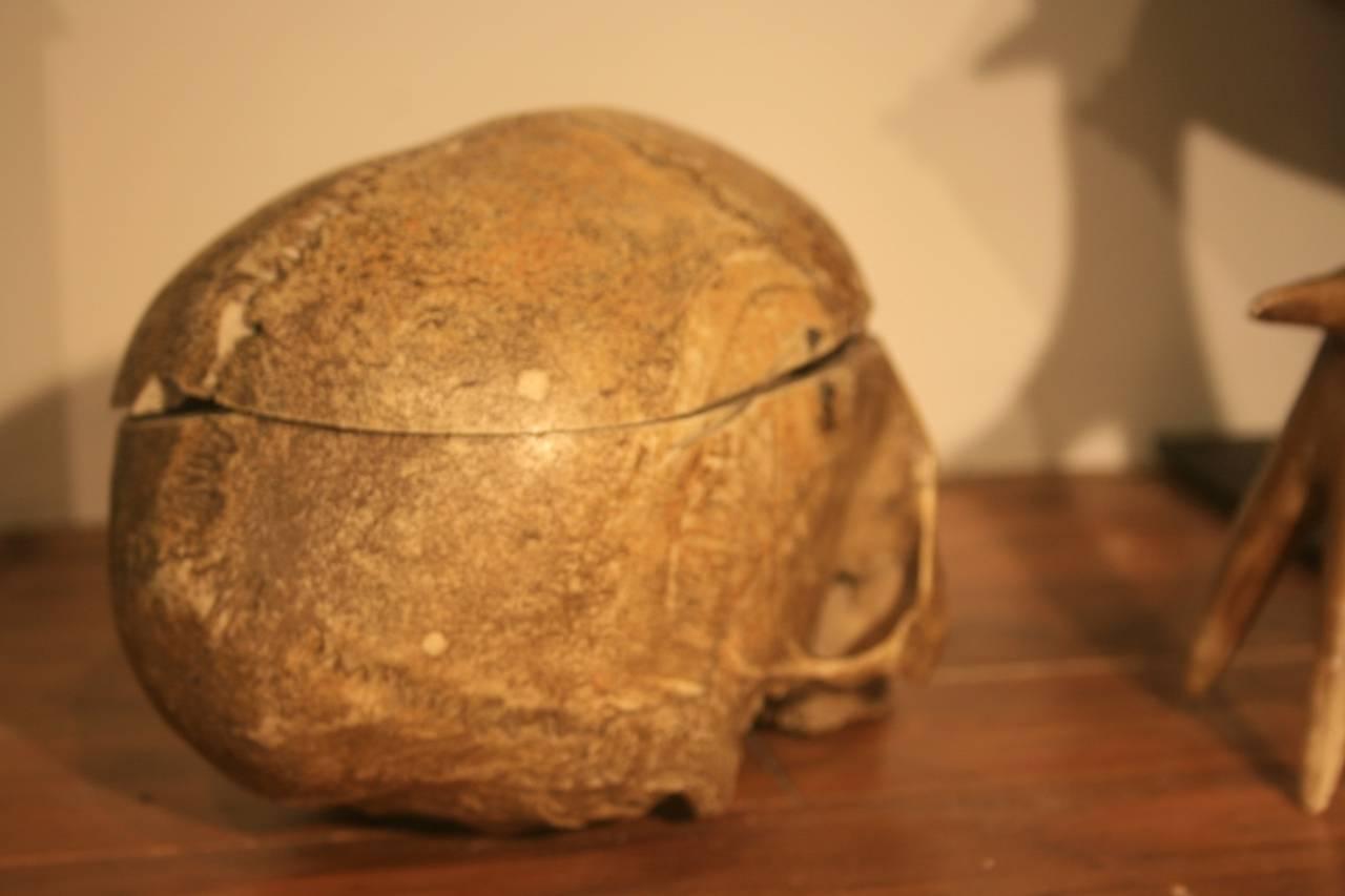 19th Century Medical School Human Skull 7