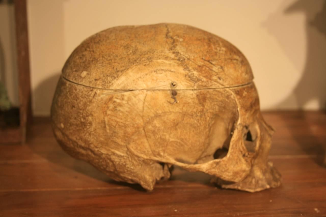19th Century Medical School Human Skull 8