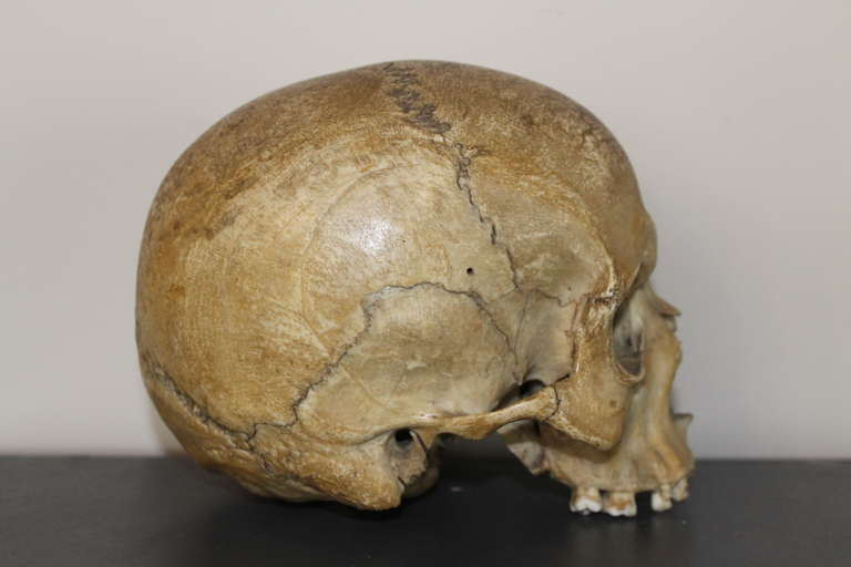 Human Medical Skull 19th Century At 1stdibs
