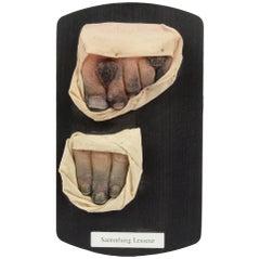 Pathological Wax Model, 1950s