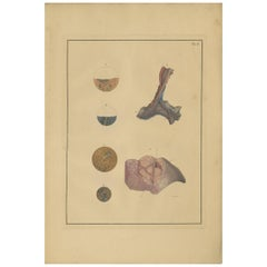 Antique Medical Print of Lungs 'Tab.4' by F.D. Reisseisen, 1822