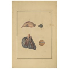 Antique Medical Print of Lungs 'Tab. 5' by F.D. Reisseisen, 1822