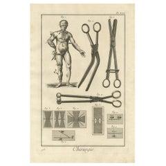 Antique Medical Print 'Pl. XXX' by D. Diderot, circa 1760