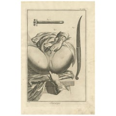 Antique Medical Print 'Pl. XIII' by D. Diderot, circa 1760