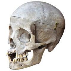 Human Skull Example 0.1