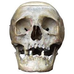Deformed Human Skull 0.3