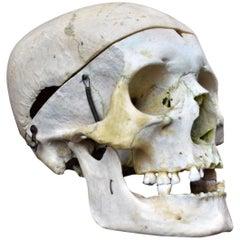 Human Skull example 0.2