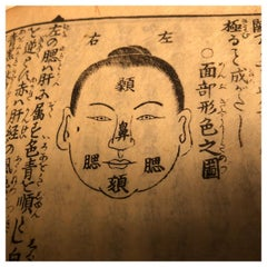 Important Chinese Acupuncture Antique Woodblock Hand Book, 19th Century Prints