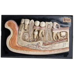 Lower Jaw Anatomical model Wood and Plaster on metal base Czech Republic, 1930s