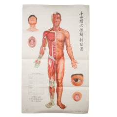 Vintage Chinese Acupuncture Posters c.1976