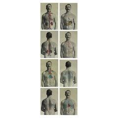 Set of 8 Original Vintage Medical Prints, circa 1900