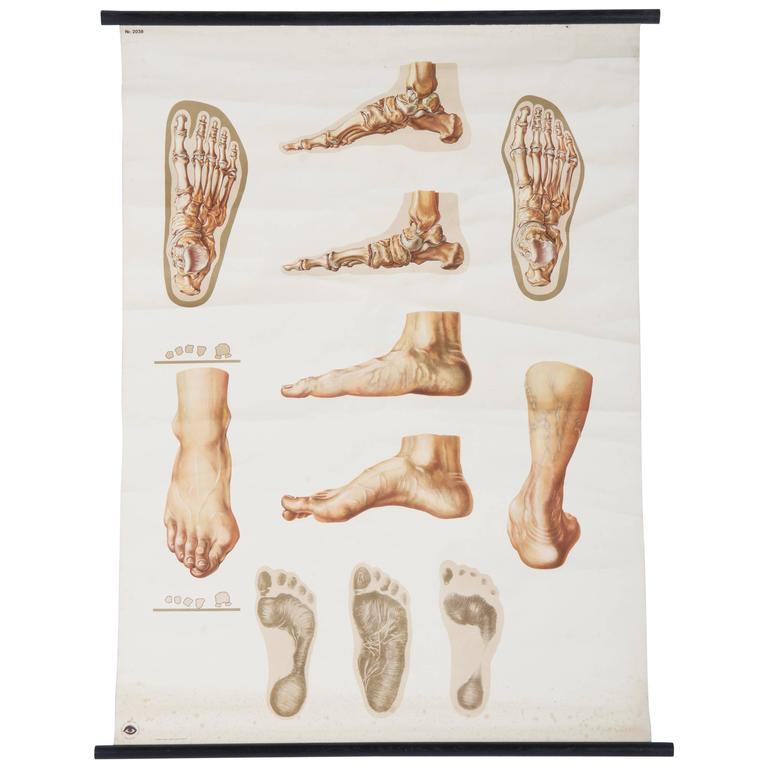 "Vintage Large German Medical Chart, Poster ""Orthopedics of Foot"""