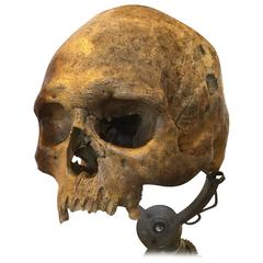 2,000 to 4,000 Year Old Trepanned Skull