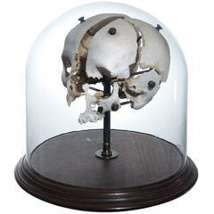 Real Beauchene Skull - Medical school teaching display.