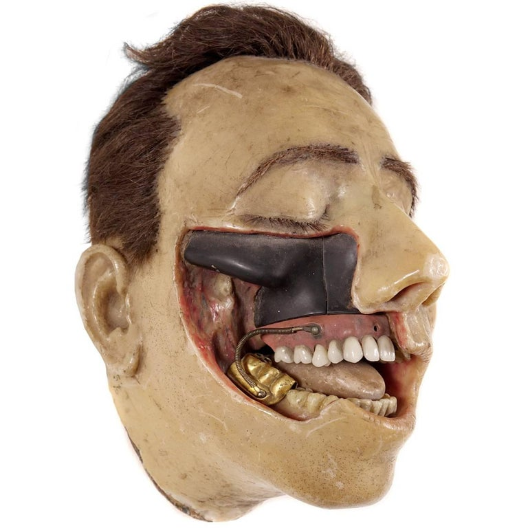 Highly Detailed Early 1800s Wax Dental Model For Sale