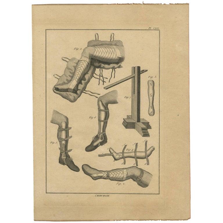 Antique Print of Leg Surgery Techniques by H. Agasse, circa 1798 For Sale