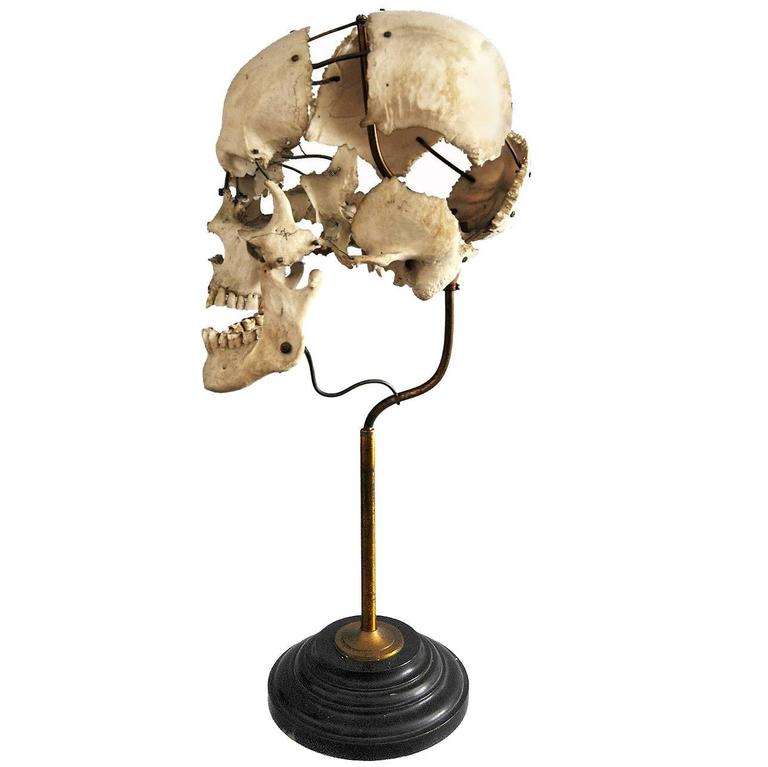 Real Beauchene Skull, Early Medical School Teaching Display 1