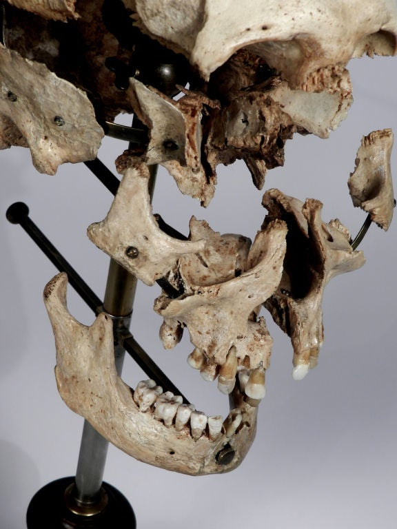 Real Beauchene Skull - Medical school teaching display. image 2