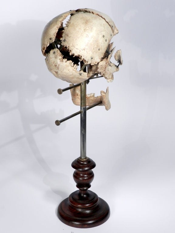Real Beauchene Skull - Medical school teaching display. image 5