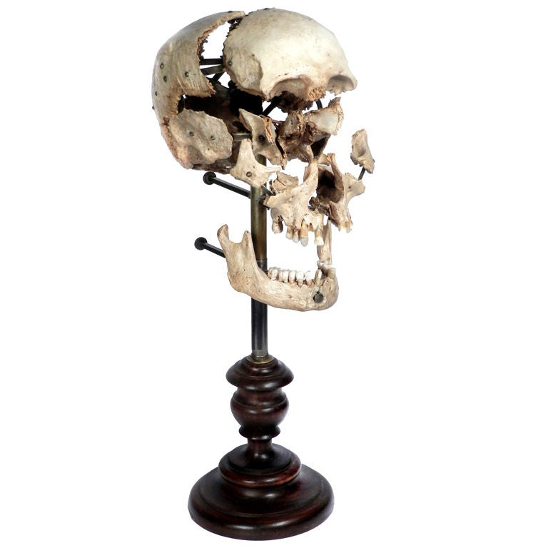 Real Beauchene Skull - Medical school teaching display.