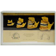 Antique Teaching Aid Wax Anatomical Model Human Teeth