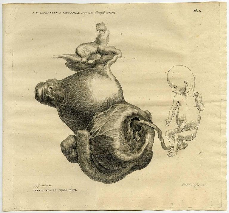 Verhandeling over eene conceptio tubaria, waargenomen in het Nosocomium [...].