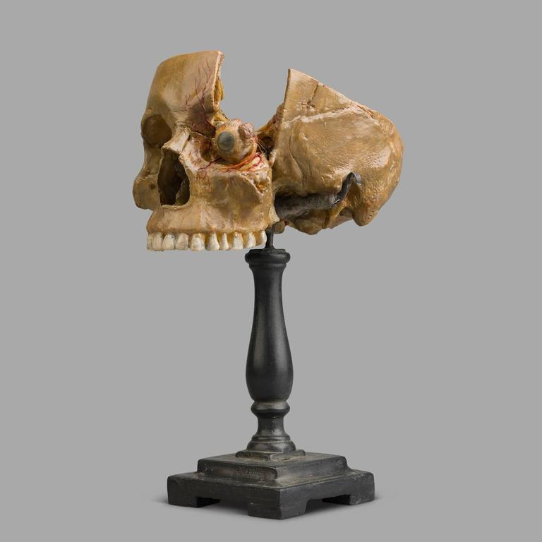 Anatomical Wax Model of Skull and Eye, 1880-1900 In Good Condition For Sale In Saint-Ouen, FR