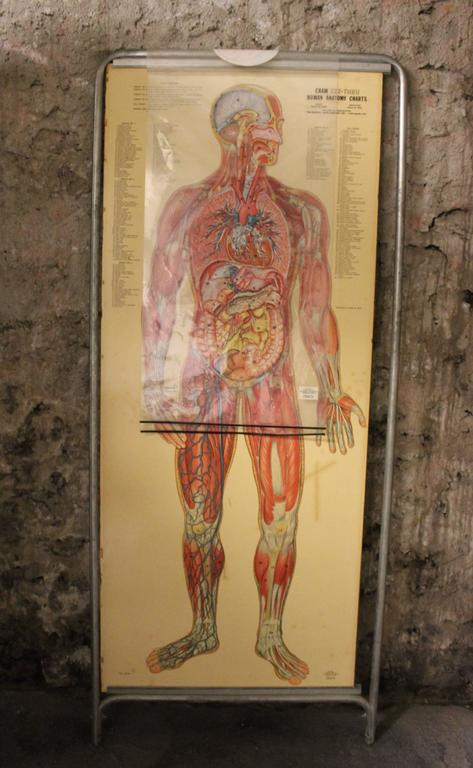 Medical Anatomy Chart Titled 'Thin Man' In Fair Condition For Sale In Hamilton, Ontario