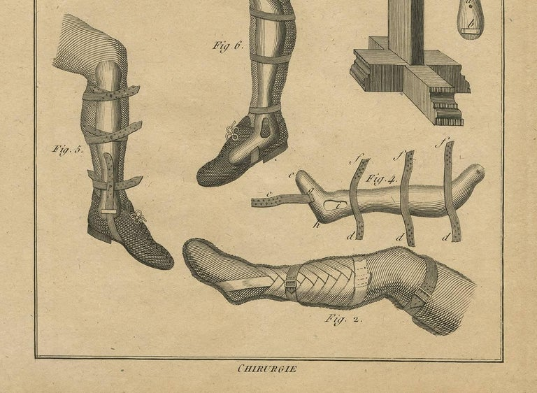 Antique Print of Leg Surgery Techniques by H. Agasse, circa 1798 In Good Condition For Sale In Langweer, NL