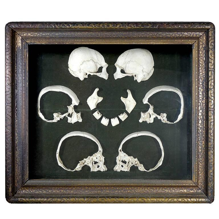 Unknown Rare Antique 1800s Sagittal Sectioned Skull For Sale