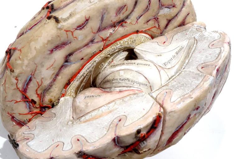 Rare 1800s Dr. Auzoux Anatomical Model 7