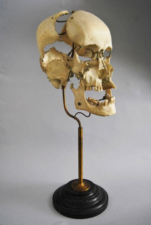 Real Beauchene Skull, Early Medical School Teaching Display 2