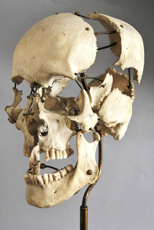 Real Beauchene Skull, Early Medical School Teaching Display 4