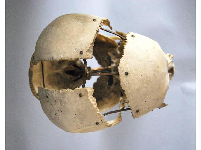 Real Beauchene Skull, Early Medical School Teaching Display 6